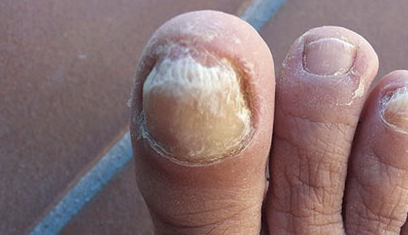 Artritis psoriásica ungueal