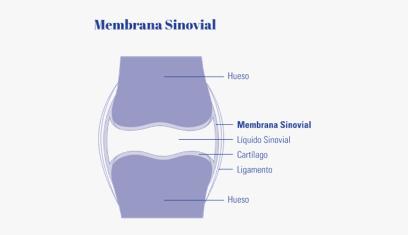 Membrana sinovial