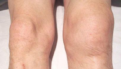 Artritis psoriásica en rodillas